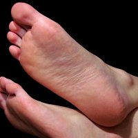Plantar Fasciitis and how to treat it.